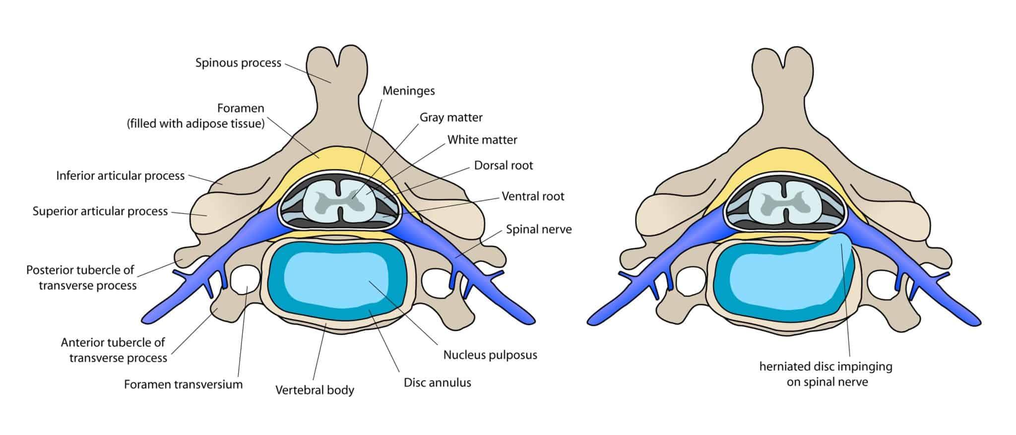 Bandscheibe im Querschnitt